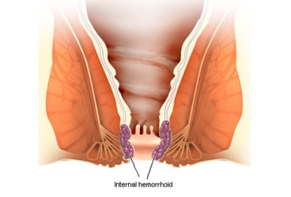 hemorrhoids-s2-illustration-of-internal-hemorrhoid